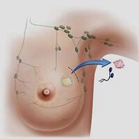 Биобсия в клинике Сураски при диагностике рака груди