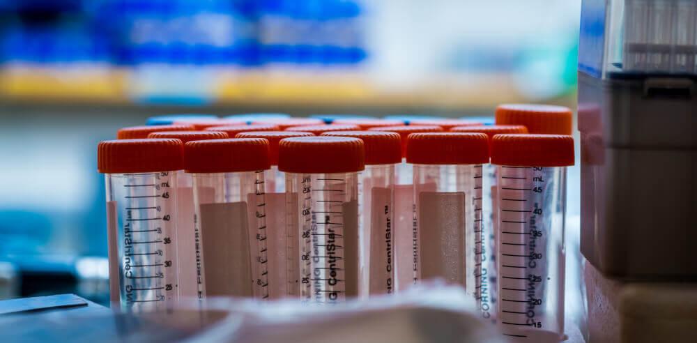 гормональная терапия в израиле при лечении рака груди