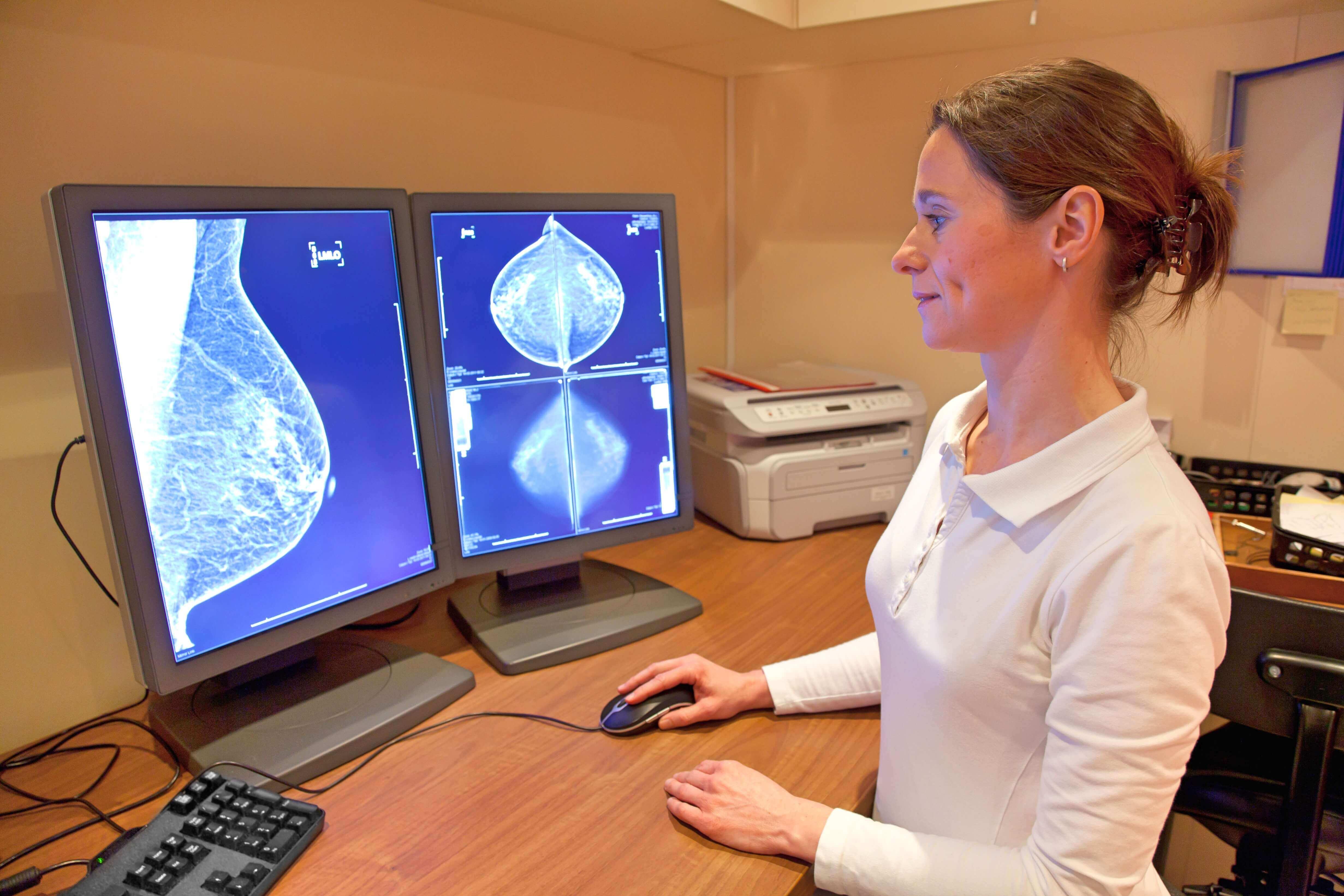 мамография в клинике сураски рак груди