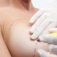 операция при раке груди в израиле