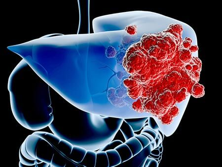 лечение рака печение в сураски