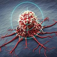 Трахеобронхоскопия при раке легких
