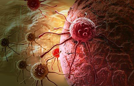 рак кожи лечение в Израиле