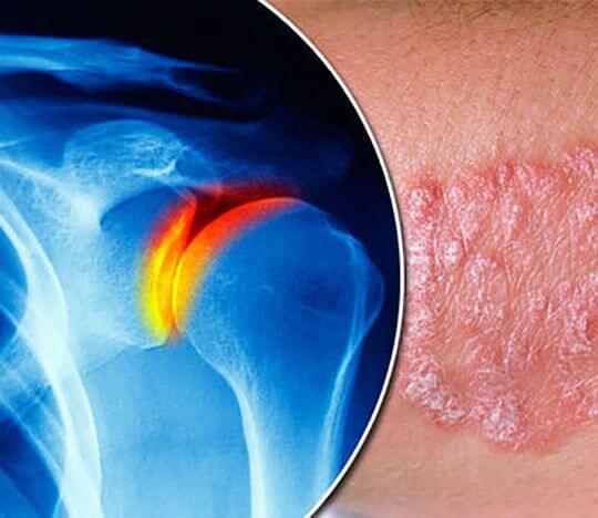 Лечение псориатического артрита в Израиле